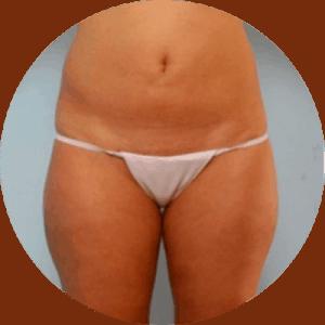 Fotos de antes y después de la liposucción