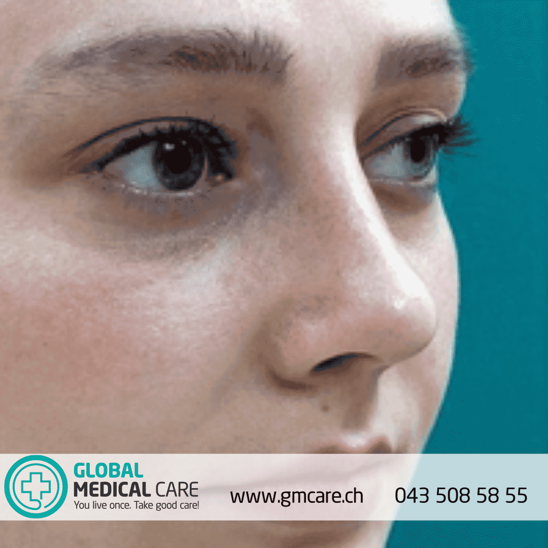 Rhinoplastik-Endergebnisse - Global Medical Care® Nasenoperation - Nasenkorrektur
