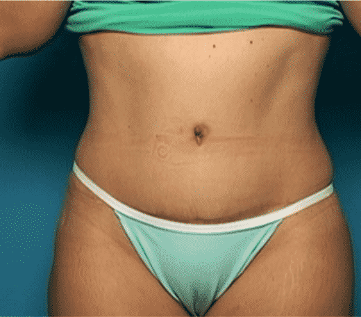Abdominoplastik Ergebnisse - Global Medical Care® Bauchstraffung