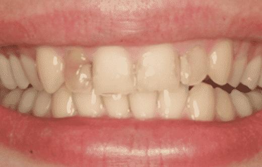 Bild des Patienten vor Lachlinie Veneers Behandlung - Global Medical Care® Zahnbehandlungen