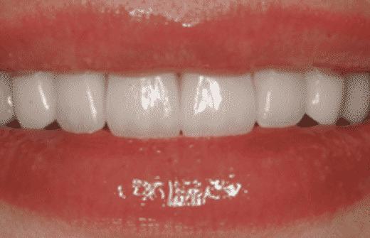 Bild von Patienten nach LACHLINIE VENEERS Behandlung - Global Medical Care Zahnbehandlungen