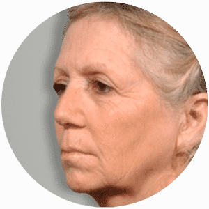 Facelift Before After Photos Reviews