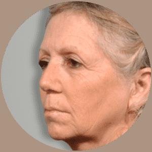 Patienten vor GESICHTSLIFTING - Global Medical Care® GESICHTSLIFTING