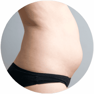 Patient vor der Liposuction Behandlung - Global Medical Care ® Liposuktion