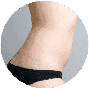 Fettabsaugung Ergebnisse - Global Medical Care® Liposuction