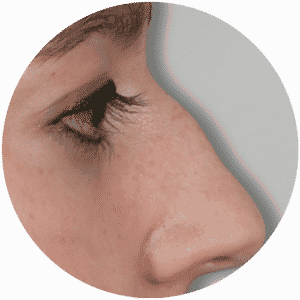 Patient vor Nasenkorrektur - Rhinoplastik - Global Medical Care®
