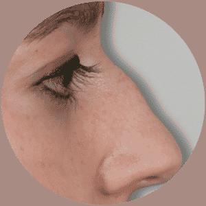 Nasenkorrektur - Rhinoplastik Ergebnisse Vorher Nachher Fotos Bewertungen- Global Medical Care®