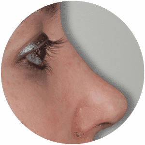 Nasenkorrektur - Rhinoplastik Ergebnisse - Global Medical Care®