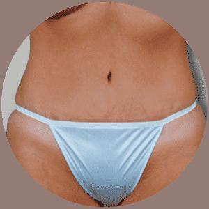 Abdominoplastik Ergebnisse - Global Medical Care® Bauchstraffung