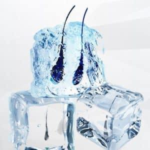 Greffe de cheveux VITA-ICE FUE