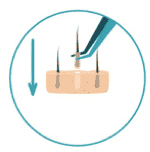 Transplantat-Implantation - HD FUE