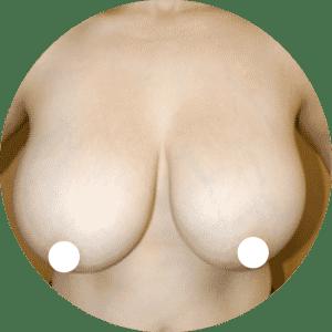 Brustverkleinerung - Bruststraffung Vorher Nachher Fotos Beste Bewertungen