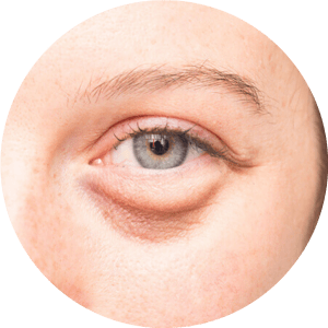 Eye Lid Surgery Before After Photos Best Reviews