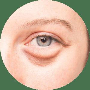 Augenlidoperationen Vorher Nachher Fotos Beste Bewertungen