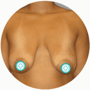 Breast Lift Before After Photos Best Reviews