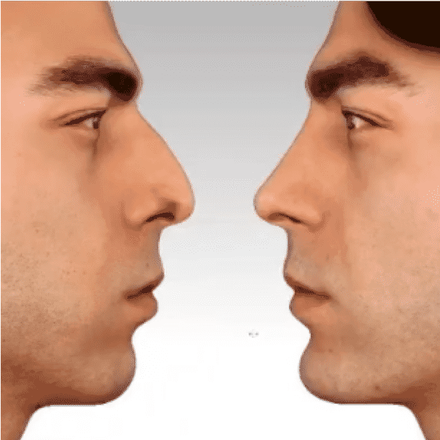 Nasenkorrektur Vorher Nachher Fotos Beste Bewertungen