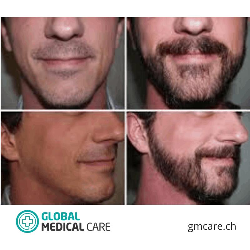 Bart-Transplantation Vorher Nachher Fotos Bewertungen