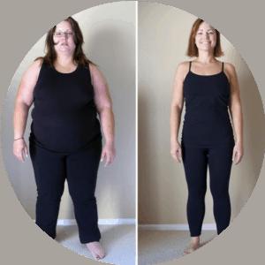 Chirurgie bariatrique - Photos avant et après - Meilleures critiques