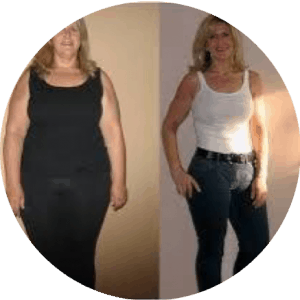 Bariatric Surgery Before After Photos Best Reviews