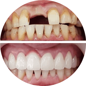 Dental Implants Before After Photos Best Reviews