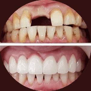 Implantes dentales - Fotos de antes y después - Las mejores críticas