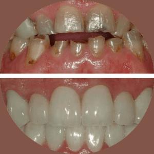 Zahnveneers Vorher Nachher Fotos Beste Bewertungen