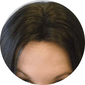 Women Hair Transplant Before After Photos Reviews
