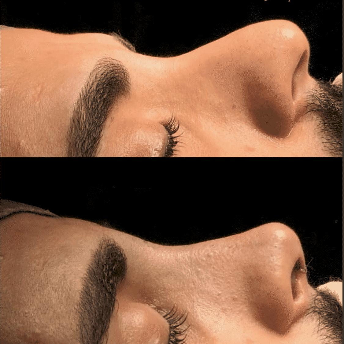 Nose Job Before After Photos Best Reviews