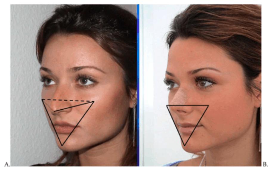 Comparing Nose